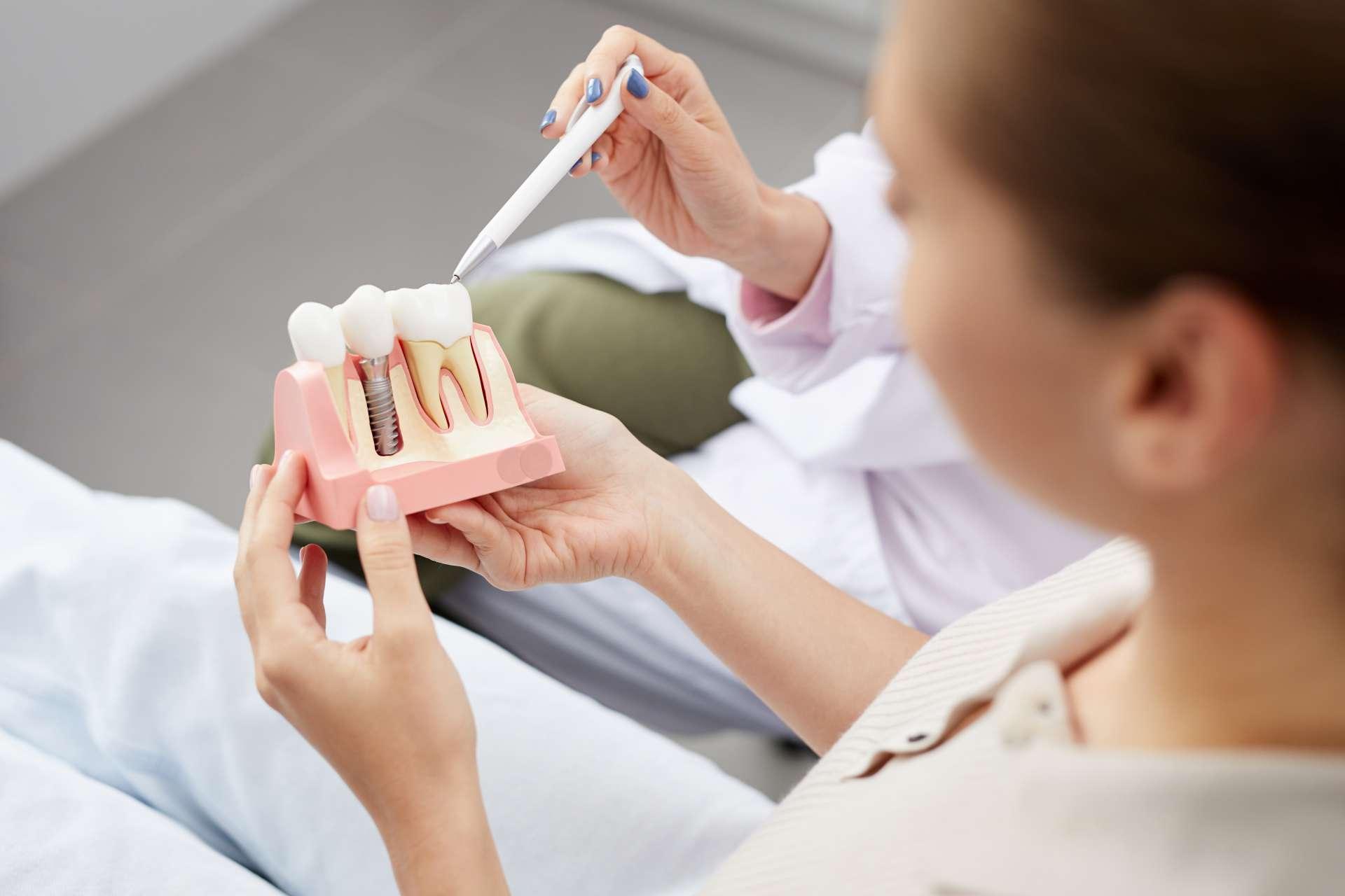 Что такое имплантация зубов: особенности, этапы, методики